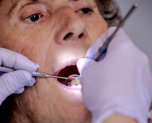 A senior woman undergoing a dental exam