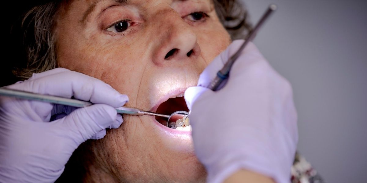 Can Seniors Whiten Their Teeth? | Whitening Aging Yellow ...